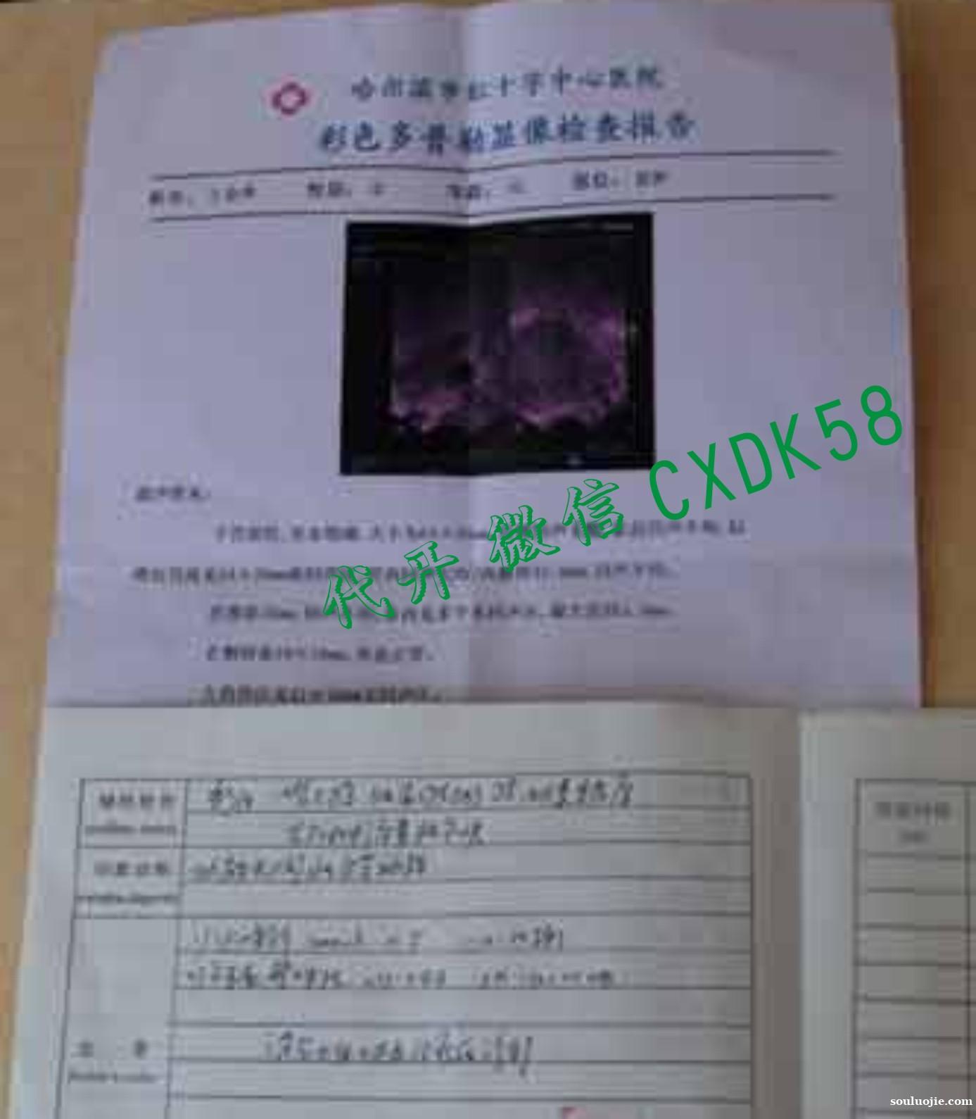 青岛市假怀孕b超哪里有开/b超图片+微CXDK58